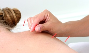 AcuRadiance: One or Three 60-Minute Acupuncture Treatments at AcuRadiance (Up to 75% Off)
