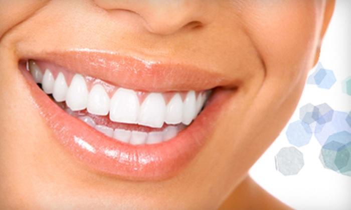 Smile Splendor - Dallas: $79 for One-Hour, In-Office, Teeth-Whitening Treatment with Take-Home Whitening Pen from Smile Splendor ($324.90 Value)