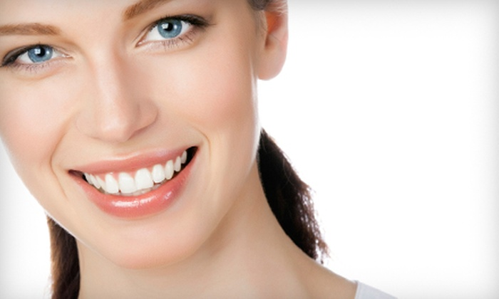 Owens, Stafford, & Robbins, DDS - Midtown: $1,999 for Four Lumineers Dental Veneers at Owens, Stafford, & Robbins, DDS ($5,612 Value)