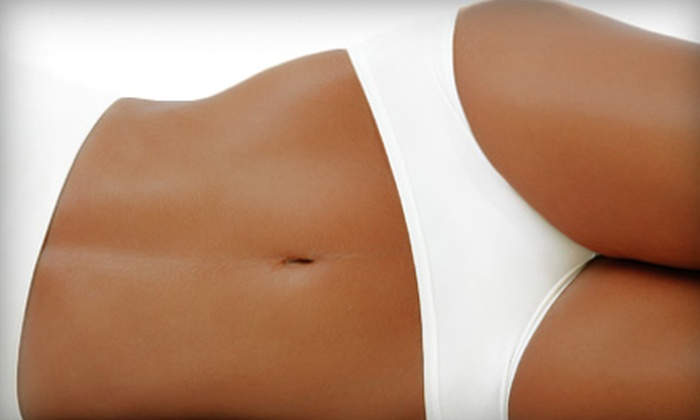 MDS Medical Spa - Woodland Hills: $599 for Four Exilis Laser-Lipo Body-Contouring Treatments at MDS Medical Spa in Woodland Hills ($1,600 Value)