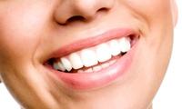 自信溢れる笑顔を見せて、好印象へ≪セルフホワイトニング / 1回分 or 3回分 or 5回分≫女性限定・リピーターもOK @RYOlu...