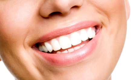 Dental Exam with X-ray and Optional Take-Home Teeth-Whitening Kit at Corpus Dentist (Up to 90% Off)
