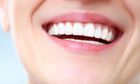 Férula de descarga semirrígida o rígida y limpieza bucal desde 49 € en Clínica Dental Esmail Oferta en Groupon