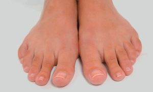 Astoria Laser Clinic & Med Spa: Laser Toenail-Fungus Removal for Up to 5 or 10 Toes at Astoria Laser Clinic & Med Spa (57% Off)