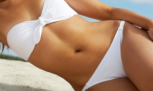 Dolce Aesthetics NY: 1 Year of Laser Hair Removal on 1 Small, Medium, or Large Area or 3 Areas at Dolce Aesthetics NY (Up to 98% Off)