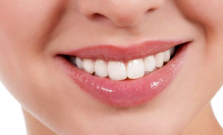 Dental Checkup Package with Optional Whitening and Take-Home Whitening Kit at Guo Dental (Up to 87% Off)
