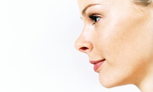 Dr. Carlos Verdeza MD: One or Two Non-Surgical Platelet-Rich Plasma Face-Lifts at Dr. Carlos Verdeza MD (Up to 69% Off)
