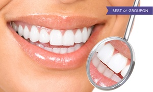 Total New Ideas: $60 for Teeth Whitening and Touch-Up at Total New Ideas ($620 Value)