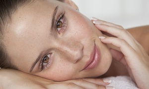 MINTS: 20 Units of Botox, One Syringe of Juvederm, or Both Treatments at MINTS (Up to 50% Off)