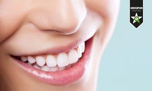USMILE: Seduta di igiene orale o in più applicazione fluoro e brillantino swarovski
