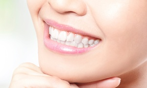 Limpieza bucal con fluorización por 9,95 € y con 1, 2, 3, 4 o 6 empastes dentales desde 19,95  € en Improdent