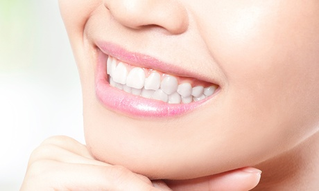 Limpieza bucal con fluorización por 9,95 € y con 1, 2, 3, 4 o 6 empastes dentales desde 19,95  € en Improdent Oferta en Groupon