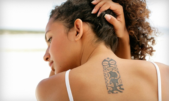 Allure Skin and Laser Center - Addison: Three Laser Tattoo-Removal Treatments on 3, 6, or 10 Square Inches at Allure Skin and Laser Center (Up to 56% Off)