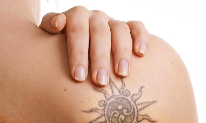 B Medical Spa - New location starting Oct. 1, 2014: Three Tattoo Removal Sessions for Up to 6, 12, or 24 Square Inches at B Medical Spa (Up to 86% Off)