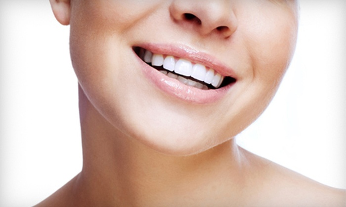 SparknShine - Multiple Locations: One, Two, or Three Teeth Whitening Sessions at SparknShine (Up to 84% Off)