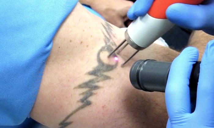Liberum Studios - Paradise: Two Laser Tattoo-Removal Treatments at Liberum Studios (60% Off)