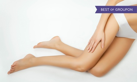 Up to 88% Off Laser Hair-Removal at Renew Laser and Skin Virginia