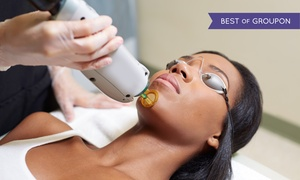 Janelle MediSpa: Six Laser Hair-Removal Treatments for a Small, Medium, or Large Area at Janelle MediSpa (Up to 94% Off)