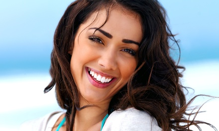$130 for an In-Office Teeth-Whitening Treatment at Abbotsford Imagine Laser ($599 Value)