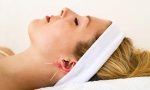 Institut für Gesundsein & Bewusstsein: 1x, 2x oder 3x 60-minütige Akupunktur-Sitzung inklusive Erstanamnese im Institut für Gesundsein & Bewusstsein ab 29,90 €