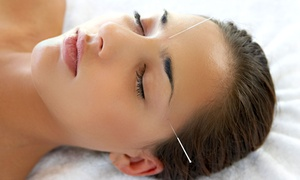AcuSpace Health Clinic: One Acupuncture Session at AcuSpace Health Clinic (61% Off)