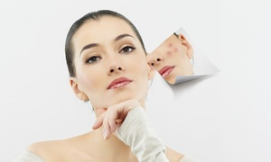 The Natural Place: One, Three, or Five IPL Acne-Treatment Facials at The Natural Place (Up to 81% Off)