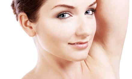 Six Laser Hair-Removal Sessions from Precision Aesthetics Medical Group (Up to 83% Off). Four Options.