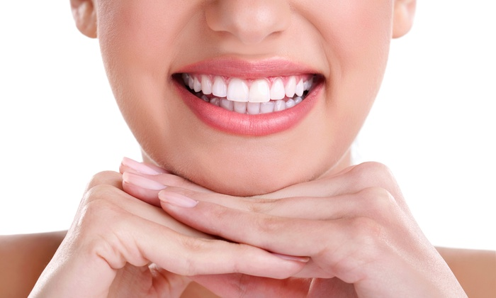 Dental Hygiene Services LLC - Meadowlark: Oral Check-Up Package with Optional Take-Home Teeth-Whitening Kit at Dental Hygiene Services LLC (Up to 74% Off)