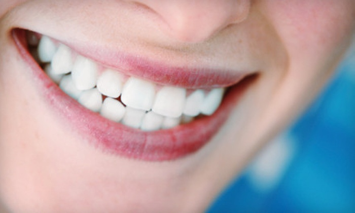 MJS Dental - Mesa: Four, Six, or Eight Porcelain Veneers at MJS Dental (55% Off)