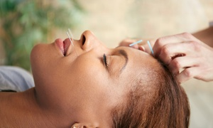 Translating Health LLC: Acupuncture Package at Translating Health LLC (Up to 62% Off). Six Options Available.
