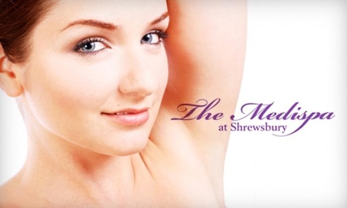The Medispa at Shrewsbury - Shrewsbury: $99 for Three Laser Hair-Removal Treatments at the Medispa at Shrewsbury (Up to $837 Value)