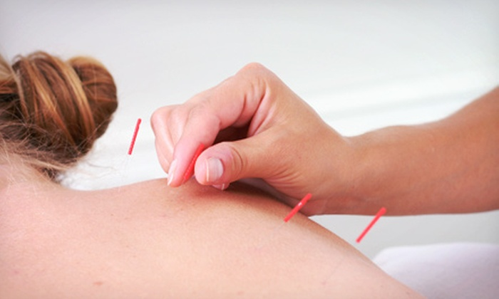 Element Wellness - Central Rockville: $63 for $140 Worth of Acupuncture at Element Wellness