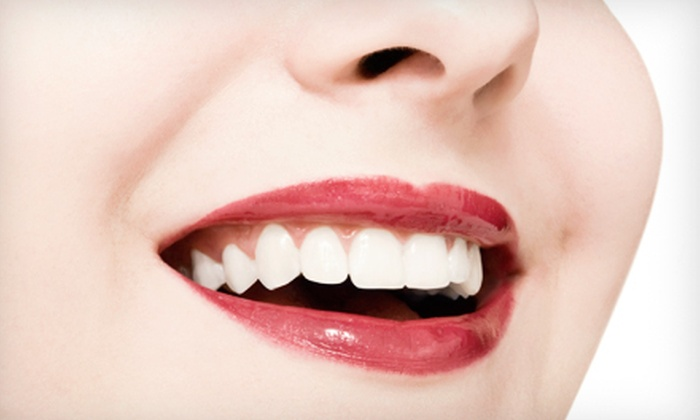 Javadi Smiles - La Mesa: $1,999 for a Complete Dental-Implant Package at Javadi Smiles ($4,700 Value)