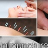 68% Off at Acupuncture Center