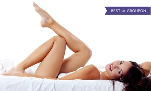 USA Vein Clinics: $99 for Two Sclerotherapy Spider-Vein Removal Treatments at USA Vein Clinics ($279 Value)