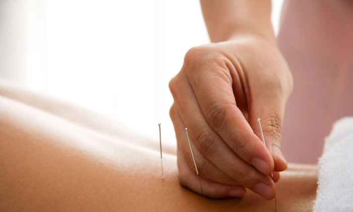 Acupuncture Connections - Multiple Locations: Three or Four Acupuncture Sessions with an Initial Consultation at Acupuncture Connections (Up to 50% Off)