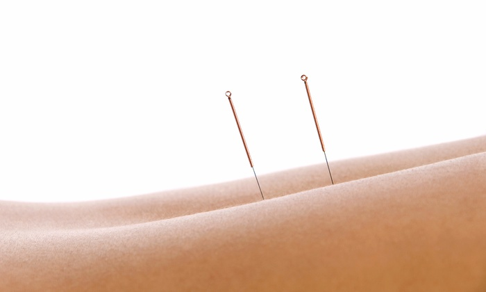 Kuhn Family Chiropractic LLC - Fort Myers: Consultation and One or Three Acupuncture Treatments at Kuhn Family Chiropractic LLC (Up to 64% Off)