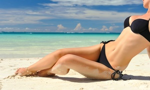 Naturally Ageless Wellness Center: Laser Hair Removal for Extra-Small, Small, Medium, or Large Area at Naturally Ageless Wellness Center (Up to 87% Off)
