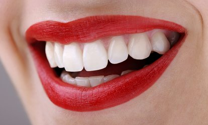 image for Teeth Whitening, Check-Up and Two X-Rays at Smileright at Waterloo (77% Off)