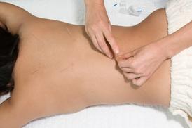 Still Quiet Place Wellness: Three Acupuncture Treatments at Still Quiet Place Wellness (78% Off)