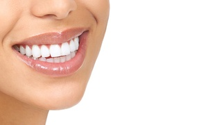 Pearly Whites Express: $31 for a 40-Minute In-Office Teeth-Whitening Sessions at Pearly Whites Express ($139 Value)