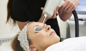 The Beauty Station: Three 30-Minute Laser Thread Vein Treatment Sessions on One Area or Combination of Areas at The Beauty Station (61% Off)