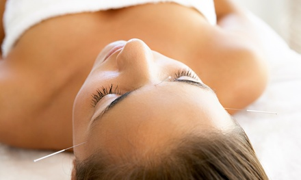 One or Two Acupuncture Treatments with Consultation at B. Well Acupuncture (Up to 50% Off)