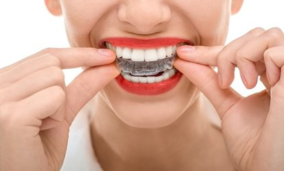 $30 for $2,195 Towards Full Invisalign and a Take-Home Teeth-Whitening Kit at Rainier Dental