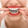98% Off Invisalign and Teeth-Whitening at Rainier Dental