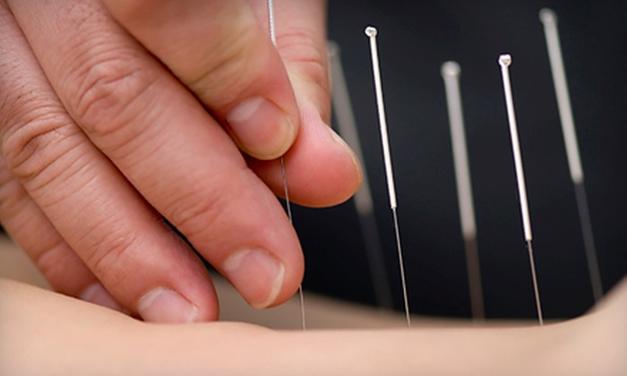 Meng's Acupuncture Medical Center - Palm Beach Gardens: One, Two, or Three Acupuncture Sessions at Meng's Acupuncture Medical Center (Up to 90% Off)