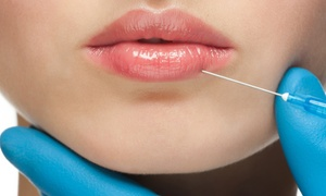 AMH Revitalise: Dermal Filler on One or Two Areas at AMH Revitalise (Up to 48% Off)