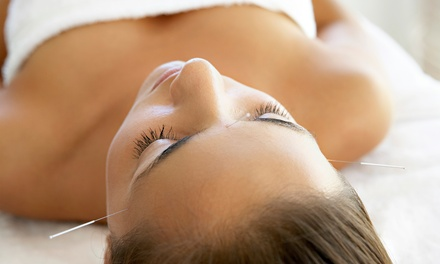 Acupuncture Treatments at Acupuncture & Holistic Health Associates (Up to 90% Off). Three Options Available.