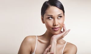 Kariman's Skin Care: $149 for Three LED Acne Treatments and Finishing Facial Peels at Kariman's Skin Care ($370 Value)