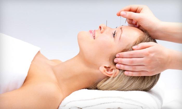 Ohio Wholistic Acupuncture - Worthington Acres: $25 for an Acupuncture Treatment at Ohio Wholistic Acupuncture ($63 Value)